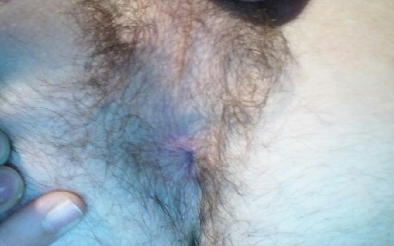 hairy4u32